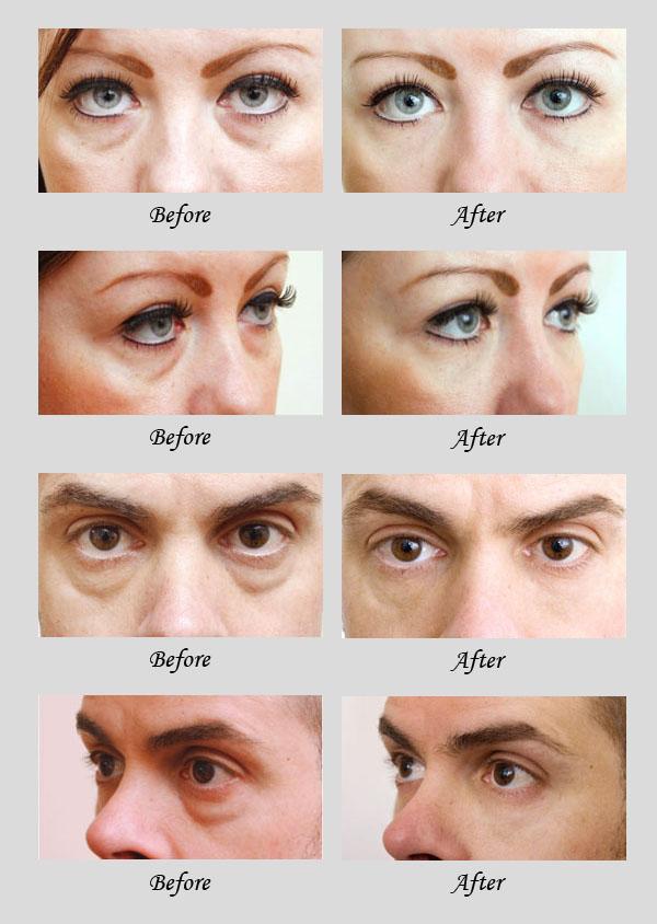 eyebag removal